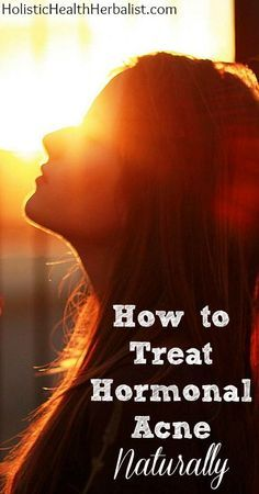 How to Treat Hormonal Acne Naturally http://www.holistichealthherbalist.com/how-to-treat-hormonal-acne-naturally/