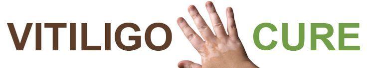 Vitiligo Cure Information