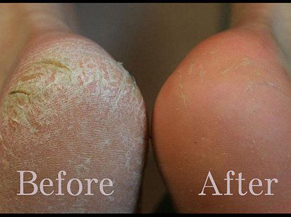 If you've got tons of dry, scaly skin on the bottoms of your feet, try a Baby Foot exfoliating mask. | 21 Foot Care Tricks To Treat Your Tired And Sore Feet