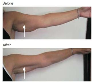 "Ultrasonic cavitation and RF to treat sagging arms AKA ""the hand bags"" Westbrook CT www.secretbeauty4u.com 203-565-7853 Free consults"