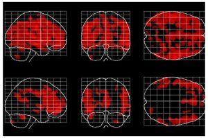 Areas of the brain affected by aging (in red) are fewer and less widespread in people who meditate, bottom row, than in people who don't meditate. Building on their earlier work that suggested people who meditate have less age-related atrophy in the brain's white matter, a new study found that meditation appeared to help preserve the brain's gray matter, the tissue that contains neurons.