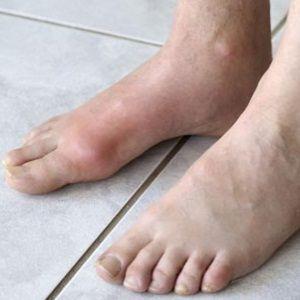 acido urico y fitoterapia dolor de pies por acido urico cuanto es lo normal del acido urico