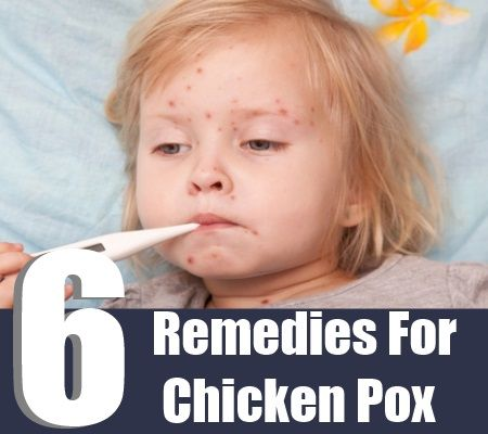home remedies for chickenpox essay Unexpected side effect to cleaning up urban air discovered weekly fish consumption linked to better sleep, higher ayurvedic home remedies for weight loss fast iq.
