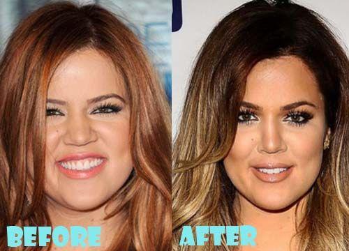 Khloe Kardashian Before And After Nose Job