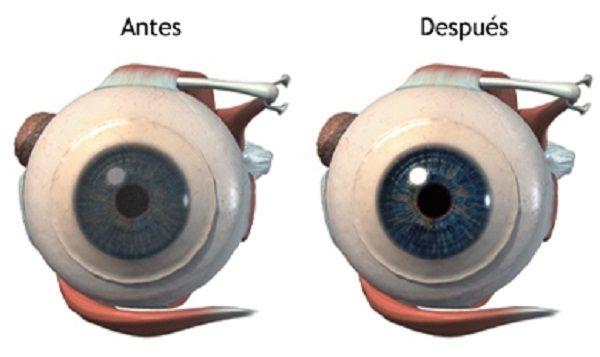 Con el primer uso de este ingrediente comienza a notar la mejora en su visión! Después del 4to uso obtendrá una vista como la de 30 años… | Salud con Remedios