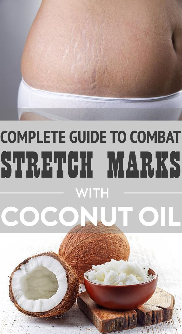 Coconut oil to combat stretch marks