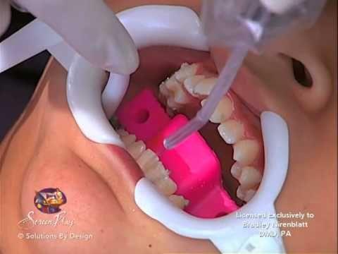 Getting Braces On: Nirenblatt Orthodontics