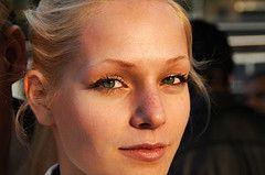 Tighten loose skin under eyes and remove under eye wrinkles