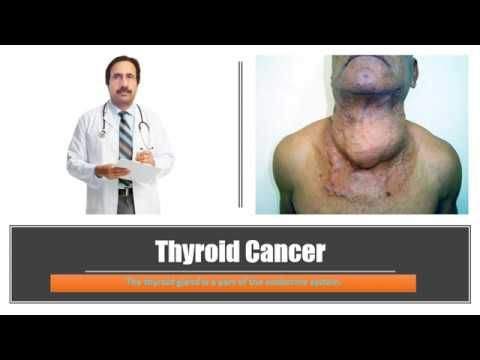 Thyroid Cancer : Causes, Diagnosis, Symptoms, Treatment, Prognosis - WATCH THE VIDEO   *** symptoms of thyroid cancer ***   LIKE | COMMENT | SHARE | SUBSCRIBE For more info visit ====================================== Thyroid Cancer, Papillary thyroid cancer, Medullary thyroid cancer, Follicular thyroid cancer, Anaplastic thyroid cancer, Thyroid...