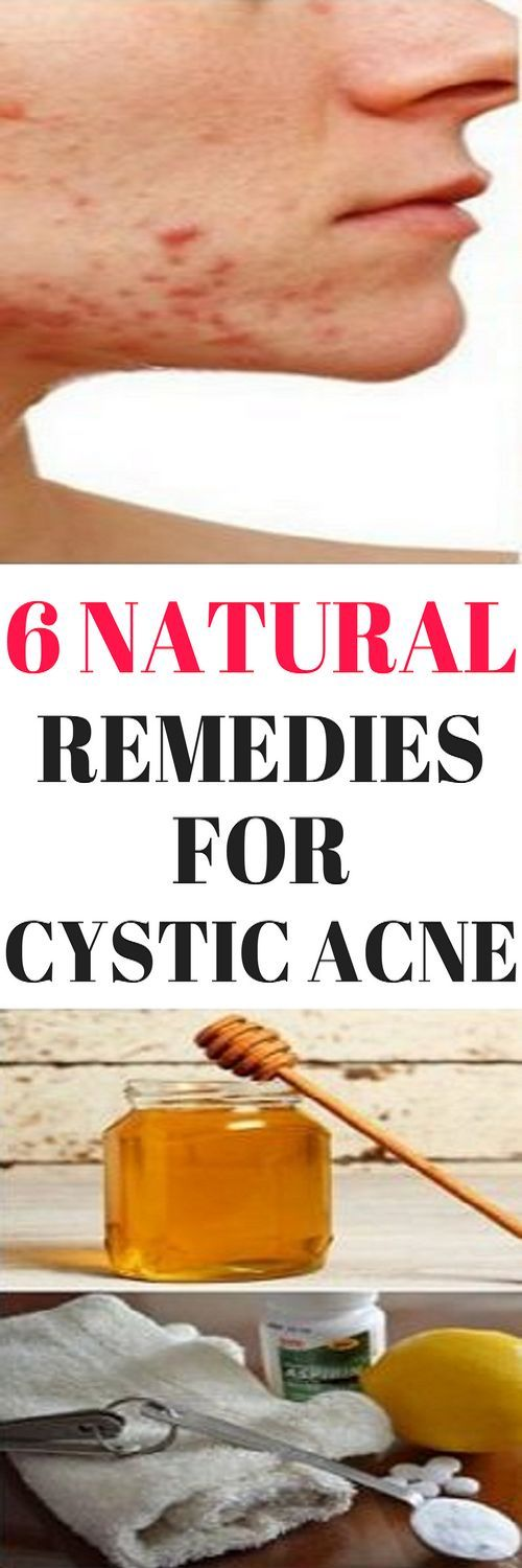 6 NATURAL REMEDIES FOR CYSTIC ACNE!