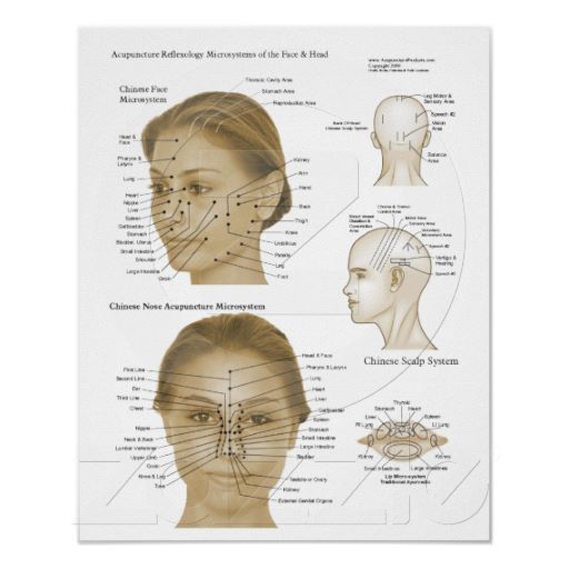 Effects of Acupuncture Paper