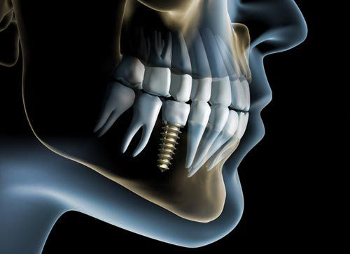 """An implant is a metallic screw made of titanium which is inserted into the jaw issue that remains to be worked out the missing tooth or your denture for all time to the jaw bone.""  ""A dental implant is one option for replacing a tooth.""  ""A dental implant is permanent tooth replacement that closely resembles your natural tooth."" Generally, missing teeth are replaced by bridges, incomplete dentures or finish dentures. Bridges utilize the support from the neighboring teeth."