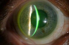 Scleral lenses benefit patients with corneal irregularities, severe dry eyes.
