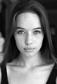 royalty of freckle  anna popplewell