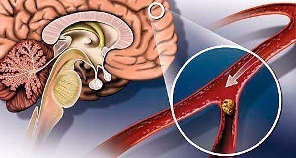 Народные средства для улучшения мозгового кровообращения | TutVse.Info