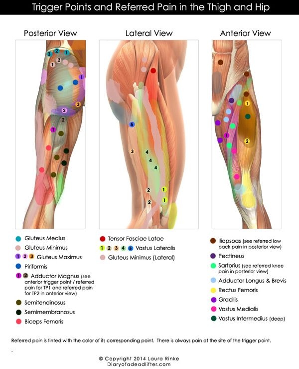 Trigger Points and Referred Pain of Hip & Thigh. from diaryofadeadlifter.com