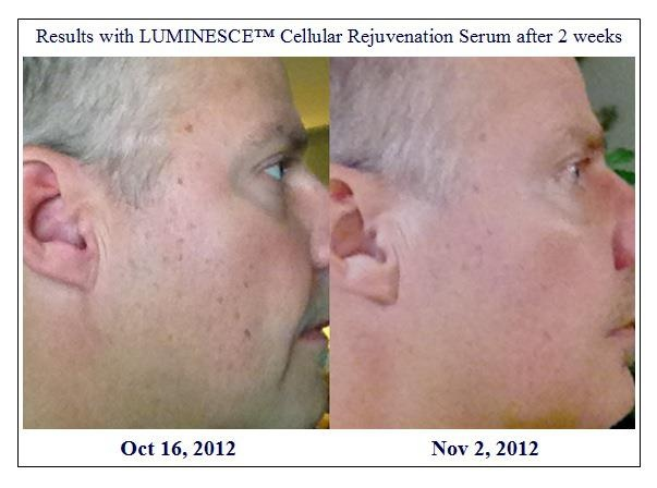 Dean had a great reduction in age spots in his first couple weeks!