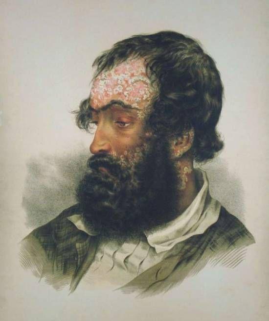 Ferdinand von Hebra's Atlas of skin diseases, 1856. Psoriasis.