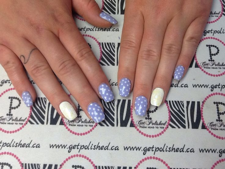 how to get rid of white dots on nails