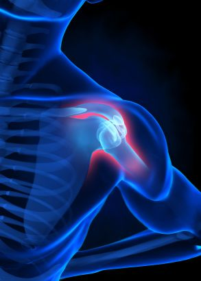 Permanent Link to Acute Anterior Shoulder Dislocation: Surgical or Conservative Management?
