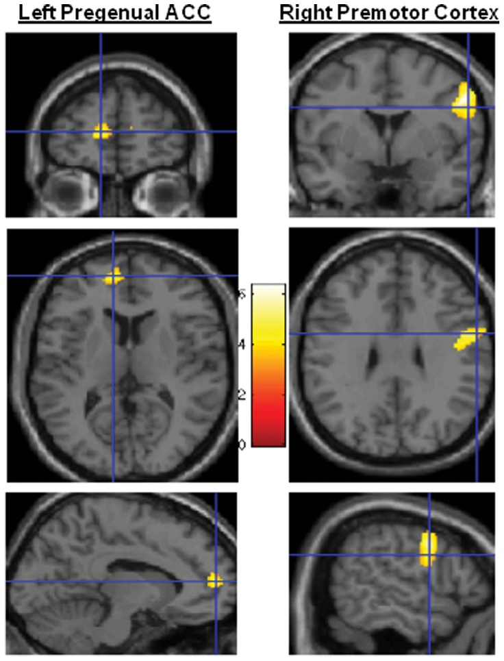 Statistical parametric mapping (SPM) showing clusters in the left pregenual anterior cingulate cortex and the right ventral premotor cortex.