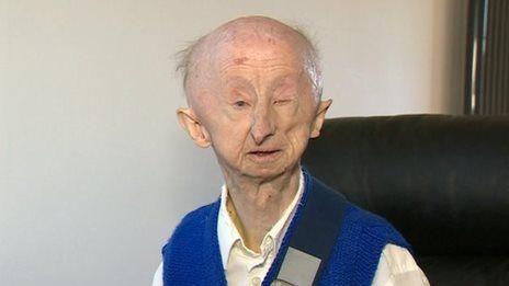 Fund for mugging victim passes £200k