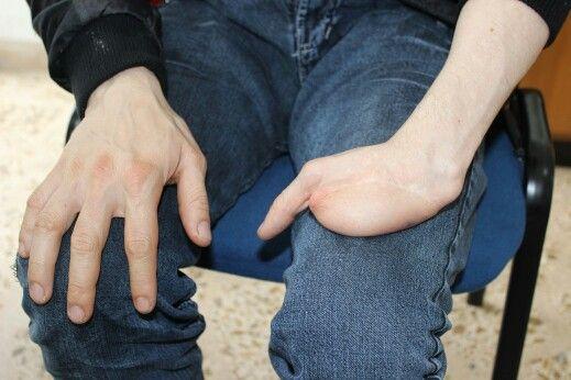 Prótesis de mano 1