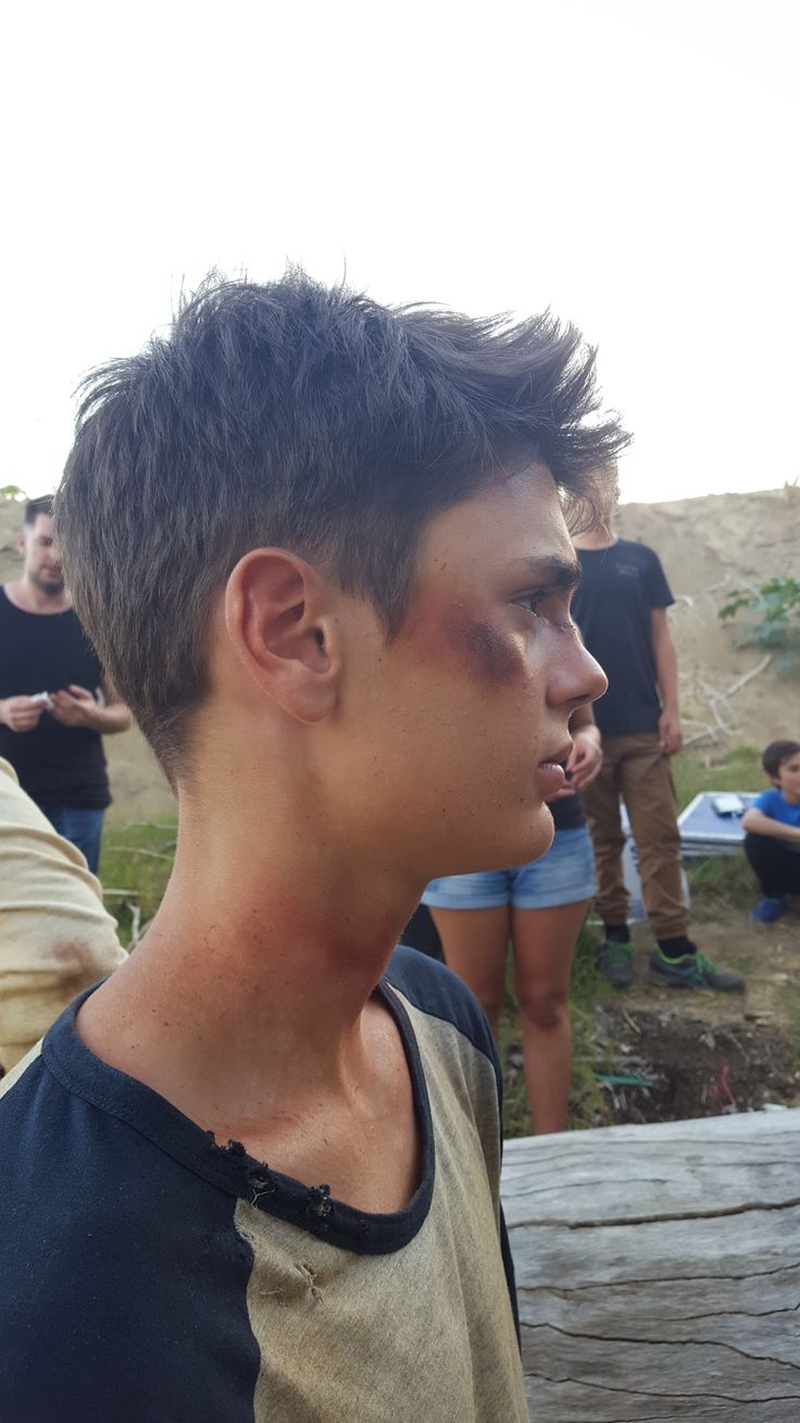 Special effects makeup on set for a film || bruises side view || by Ashleigh Hunter