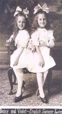 Daisy Hilton and Violet Hilton born in Brighton , Sussex, England) (5 February 1908 – January 1969) were a pair of conjoined twins or Siamese Twins who toured in the U.S. sideshow and vaudeville circuit in the 1930s.