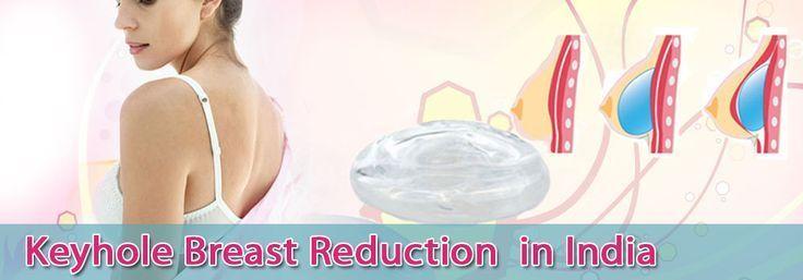 #Breast #breastreduction #HOLE #India #Key #Reduct…