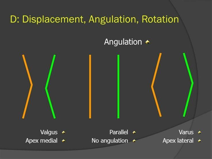 Valgus & Varus deformity ... Note: Medial angulation in Valgus deformity ...