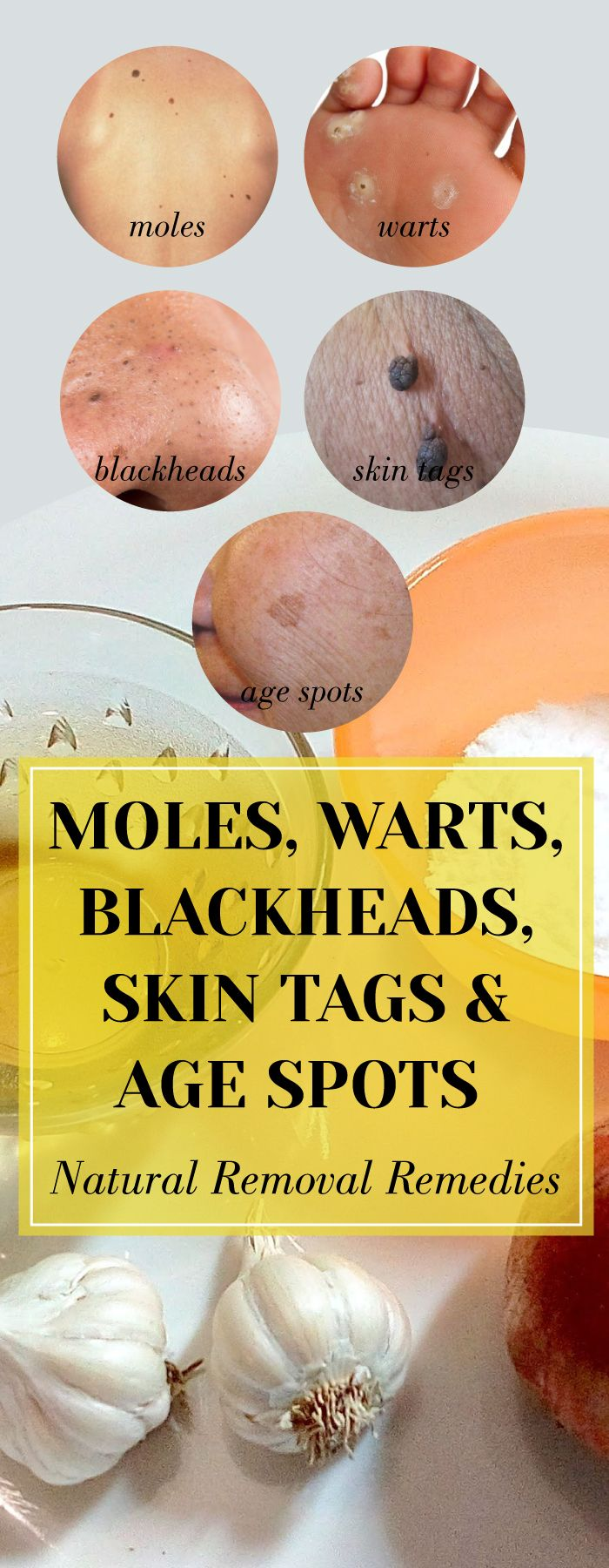 Moles, Warts, Blackheads, Skin Tags And Age Spots – Natural Removal Remedies