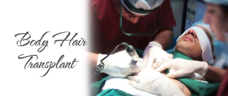 In any hair transplant surgery, normally scalp hair are used for transplantatiion. But in many cases the patients do not have a good donor area. In such cases, the surgeon can use hair from various parts of body such as chest, legs, arms and private parts too. Some people call this as chest hair transplant but mostly it means the chest to serve as donor area. Body hairs are removed using the FUE technique, leaving no linear scar. Body hair grafts are then implanted in the same way as grafts…