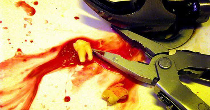 A dor de dente causa inchaço na boca?. Algumas pessoas colocam a dor de dente no topo da lista das piores dores que existem. Uma dor de dente pode começar como um incômodo leve ou uma sensação de choque elétrico quando se bebe algo quente ou gelado. Com o tempo, a dor e o inchaço podem aumentar. Ela pode variar entre latejante, aguda, constante ou sensação de queimação. A dor de dente, ...