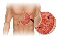 Kiedy trzeba operować wrzody żołądka