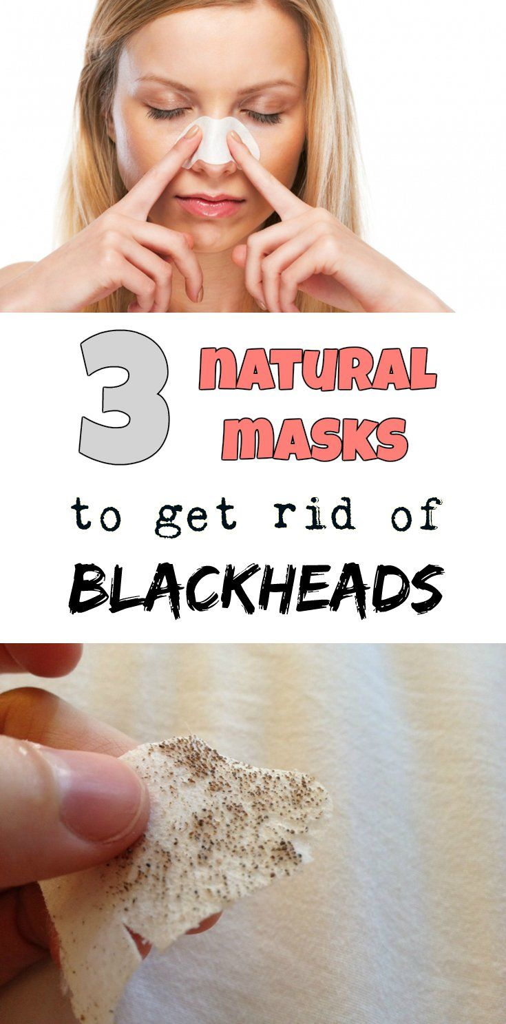 3 natural masks to get rid of blackheads