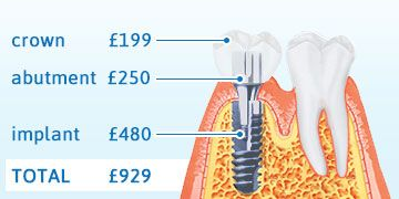 Dental implants | VitalEurope