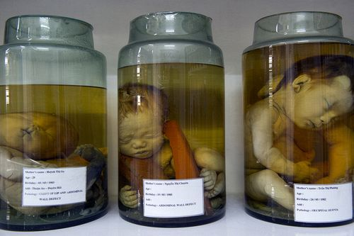 David Dare Parker  Embryos displayed for research purposes in a room at the Peace Village within the Tu Du (Freedom) Obstetrics and Gynaecology Hospital in Ho Chi Minh City, Vietnam.  [Agent Orange, Vietnam]  2010, September