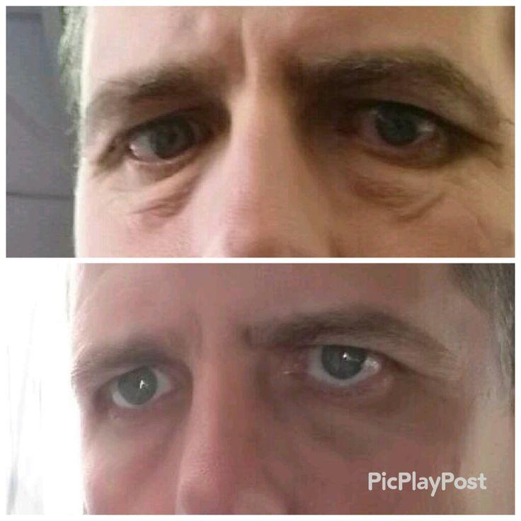 Jeunesse Serum -  before & after