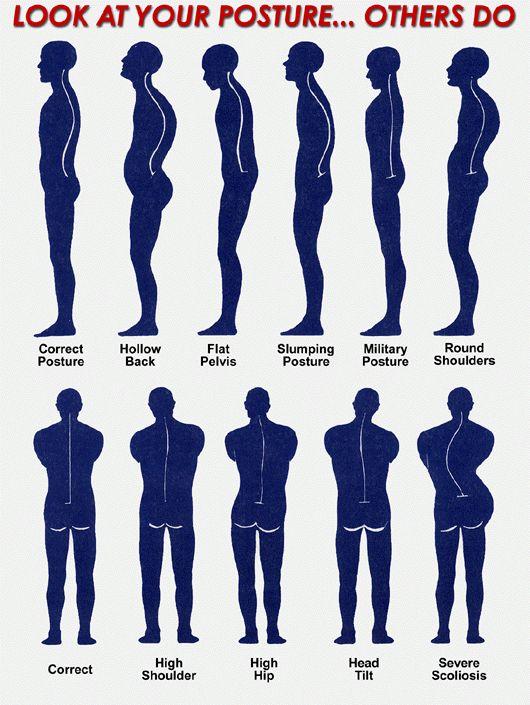 Compare your posture.    http://www.elitespinecenter.com/