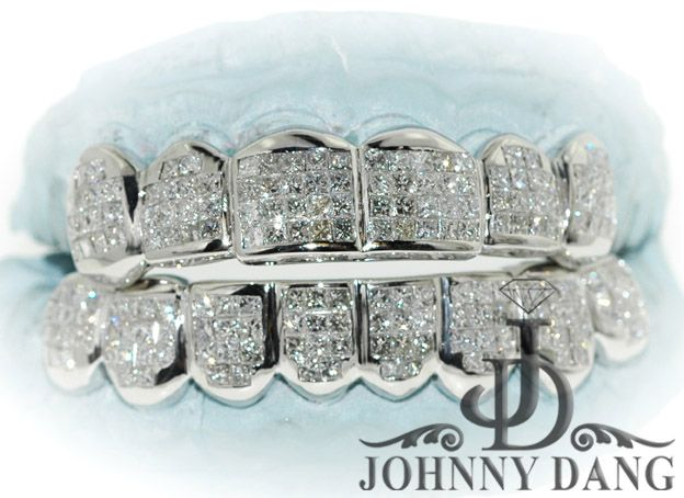 How to buy and wear grillz!(!)!