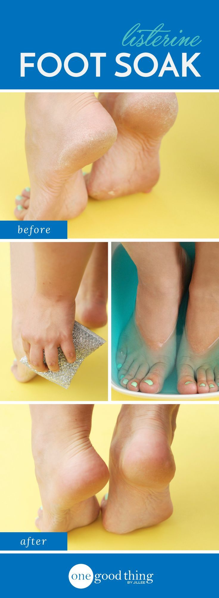 This strange-sounding foot soak of Listerine and vinegar works wonders to smooth and soften dry, cracked feet and heels. Try it for yourself!