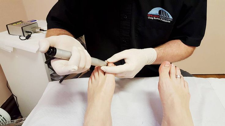 Receiving the treatment at the Newcastle Foot Clinic
