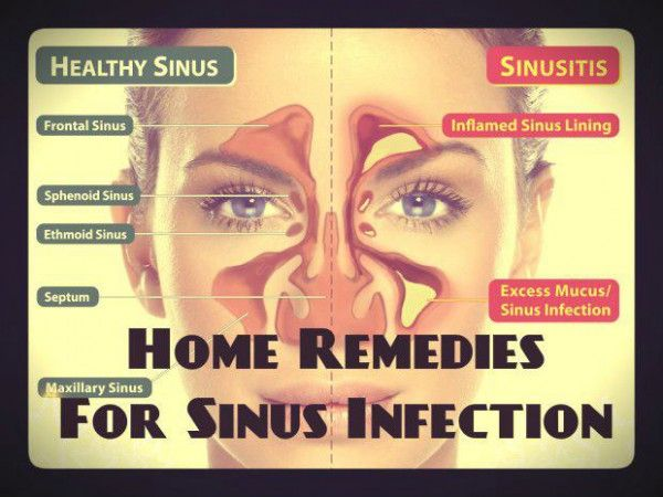 Amoxicillin Or Keflex For Sinus Infection