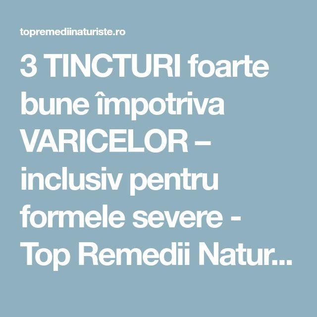 3 TINCTURI foarte bune împotriva VARICELOR – inclusiv pentru formele severe - Top Remedii Naturiste