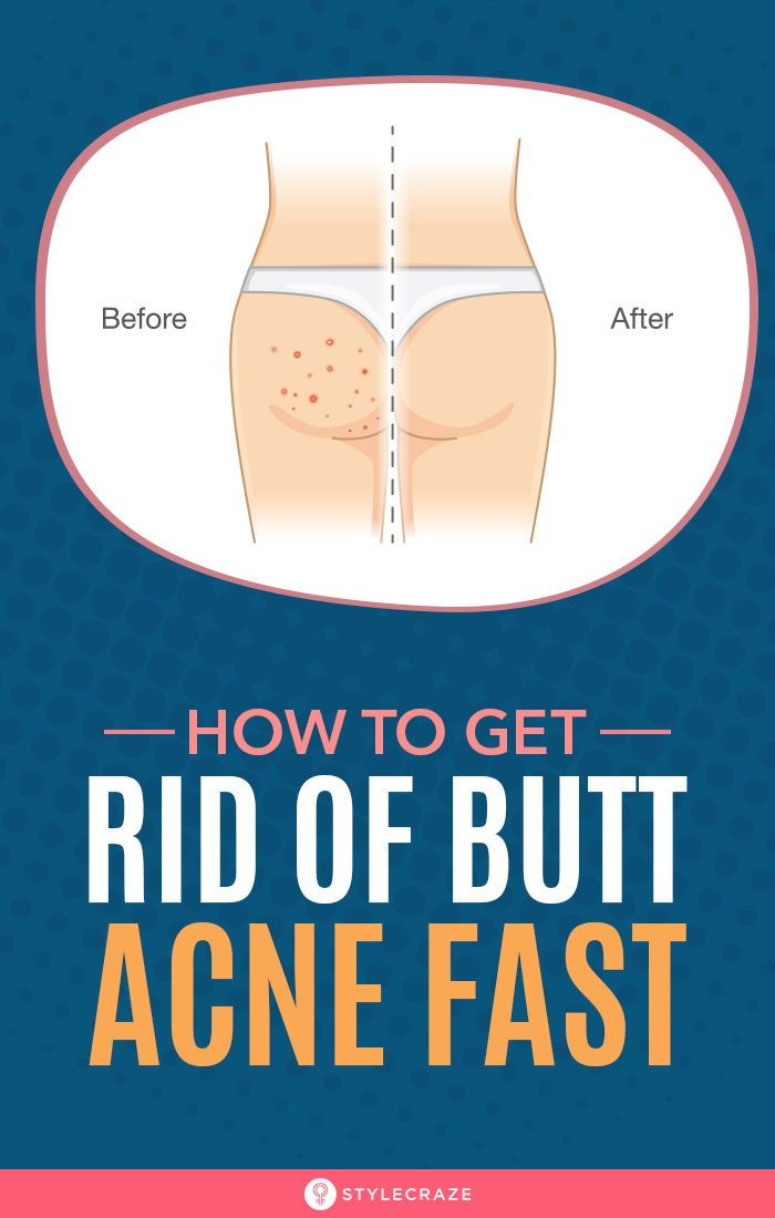 How To Get Rid Of Pimples On Bum Overnight