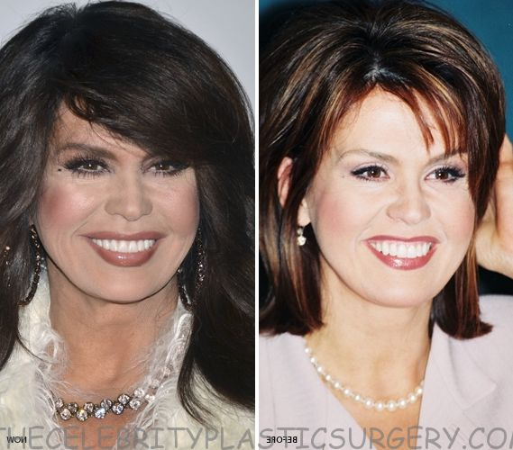 11 Best Marie Osmond Plastic Surgery Before And After