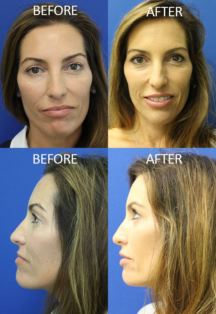 Lip Implant & Augmentation | Temporary & Permanent | Jupiter, FL