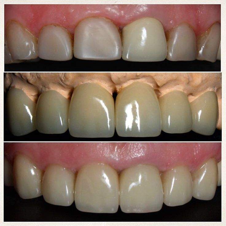 #dentistry#estheticdentistry#стоматология#стоматологиякиев#винирыкиев#виниры#veneers#emax#photoindesty#beforeandafter#canon#emax by dr.annasmile Our General Dentistry Page: http://www.myimagedental.com/services/general-dentistry/ Google My Business: https://plus.google.com/ImageDentalStockton/about Our Yelp Page: http://www.yelp.com/biz/image-dental-stockton-3 Our Facebook Page: https://www.facebook.com/MyImageDental Image Dental 3453 Brookside Road Suite A Stockton CA 95219 (209) 955-1500…