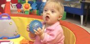 Down syndrome, also known as Down's syndrome, is a genetic condition that typically causes some level of learning disability and a characteristic range of physical features.